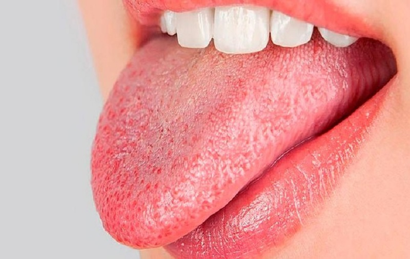 dry mouth syndrome