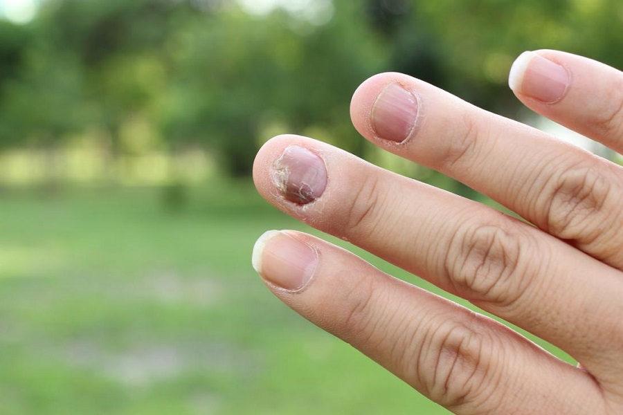5 Natural remedies for psoriasis in the nails
