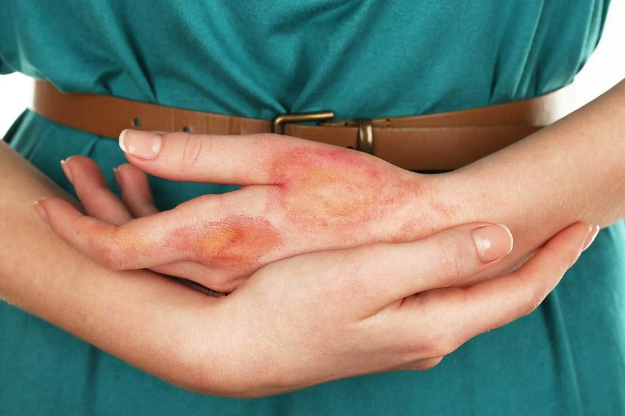 Burns in the fingers: 7 home remedies to relieve them